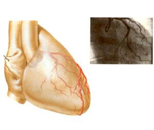 ischémie myocardique inférieure