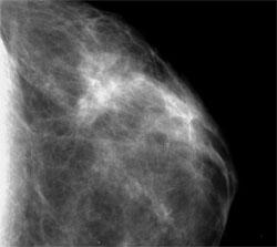 sur opacité mammaire