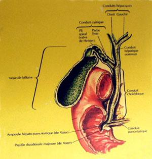 estomac prothèse métallique